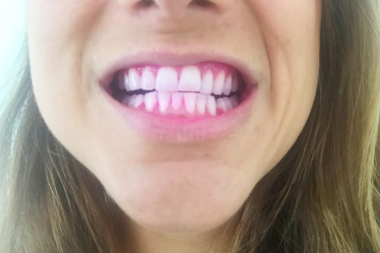 oral-B Tandplak