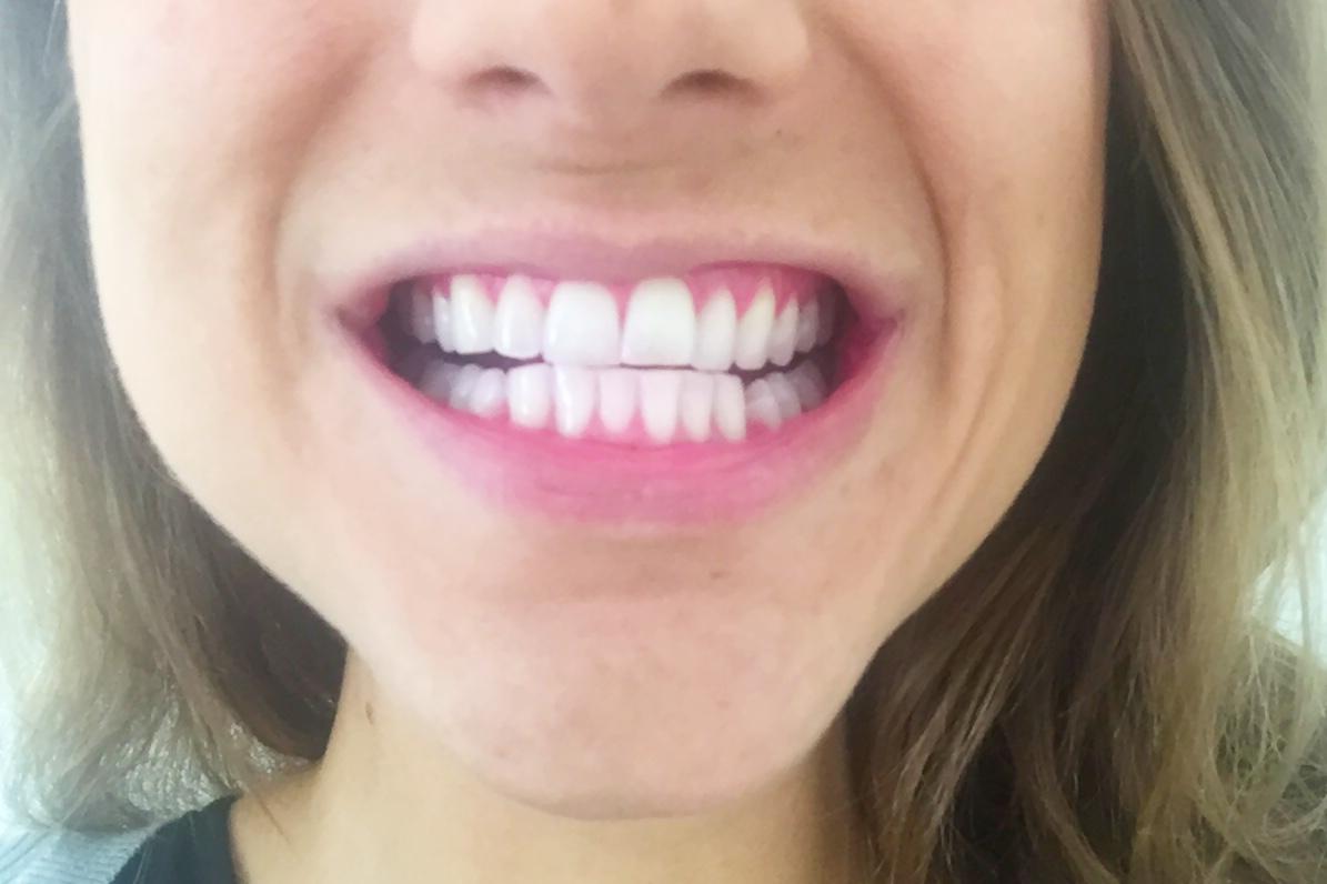 tandplak oral-B