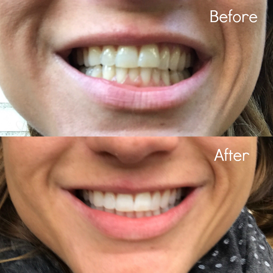 tanden bleken philips zoom!