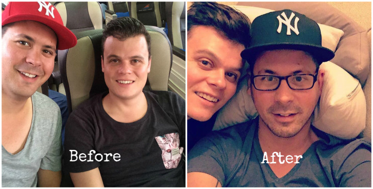 ancel before after